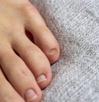 Cómo eliminar los hongos de las uñas con aceite de árbol de té - Remedio natural